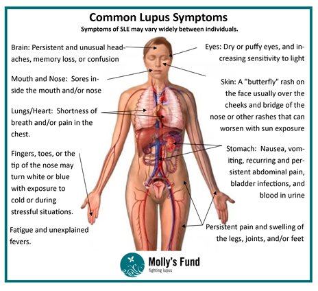 best final stages lupus disease